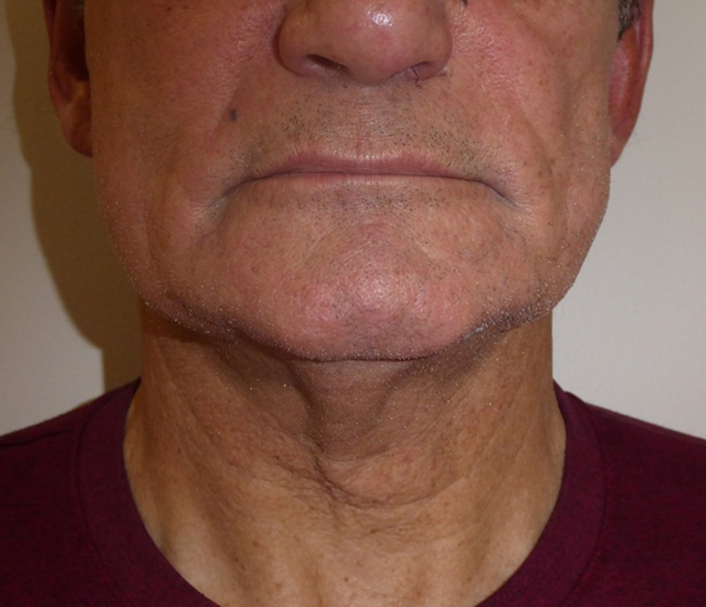 Exilis-Ultra-before-male