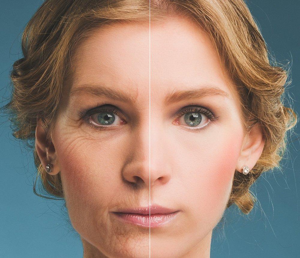 Cosmetic-enhancement
