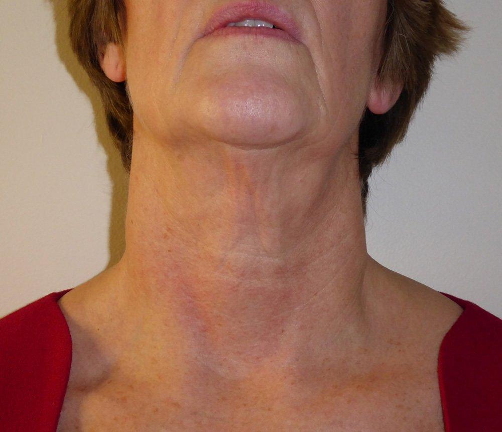 Exilis Ultra™ facial rejuvenation, contouring and firming