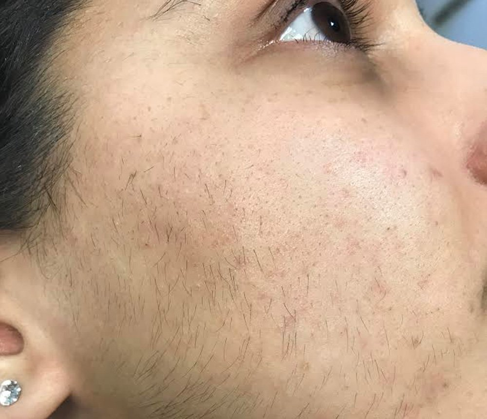 IPL-laser-hair-removal-before