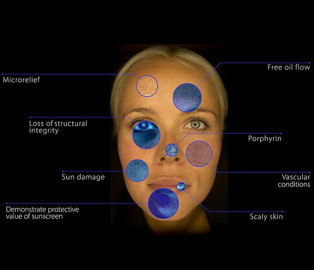 Skin-consultations