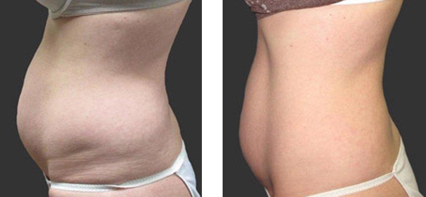 Non-Invasive Fat Reduction & Skin Tightening Treatment
