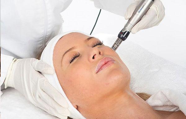 Microneedling Treatment at Top Aesthetics clinic, Twickenham