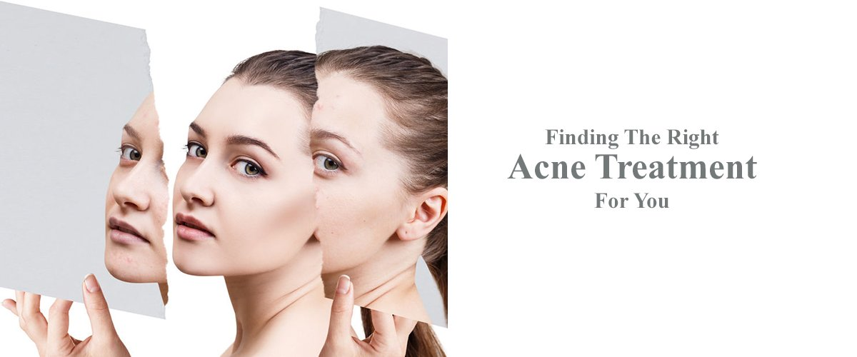 Acne Treatments at True Medispa, Twickenham