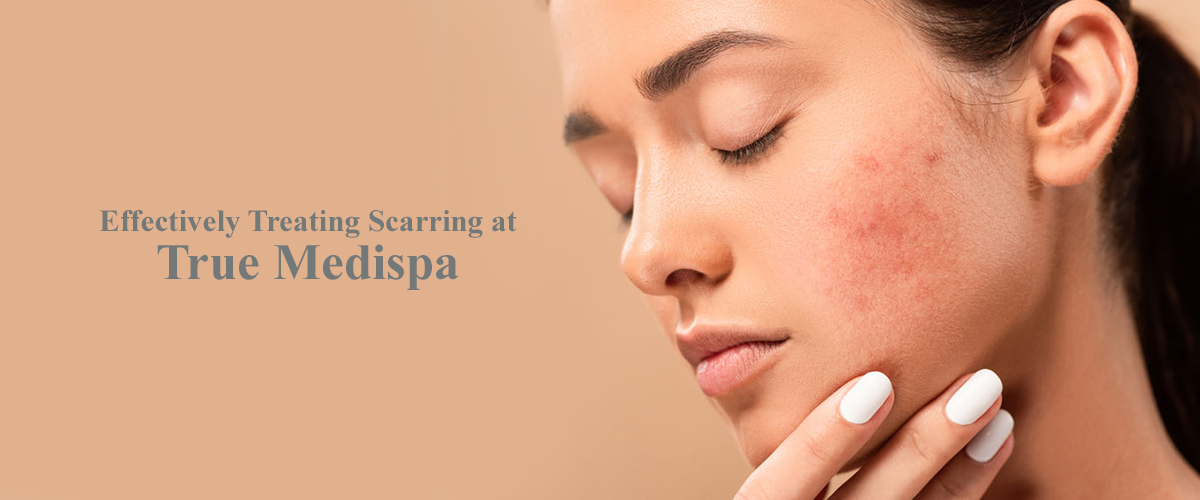 Effectively Treating Scarring at True Medispa banner