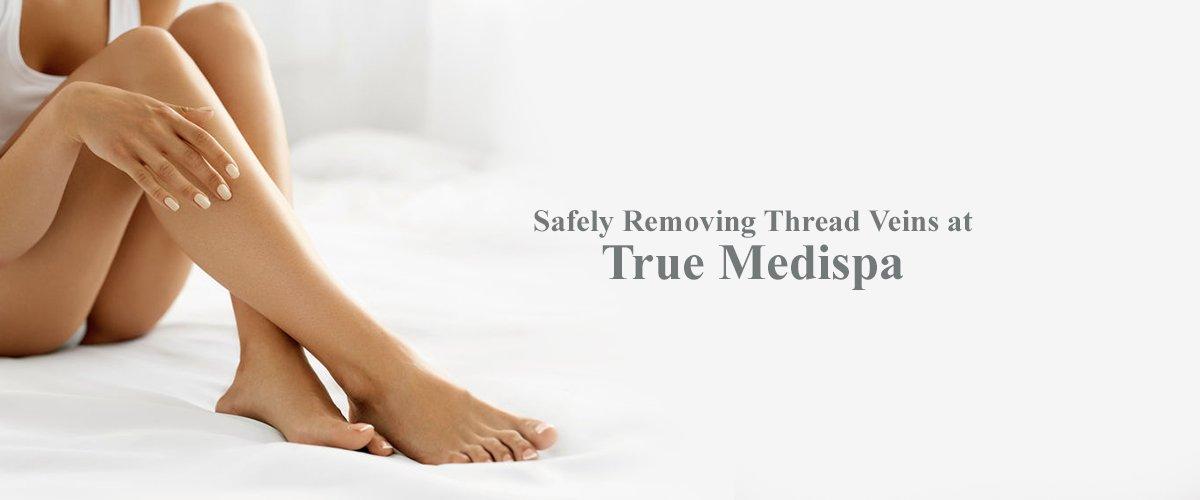 Safely Removing Thread Veins at True Medispa banner