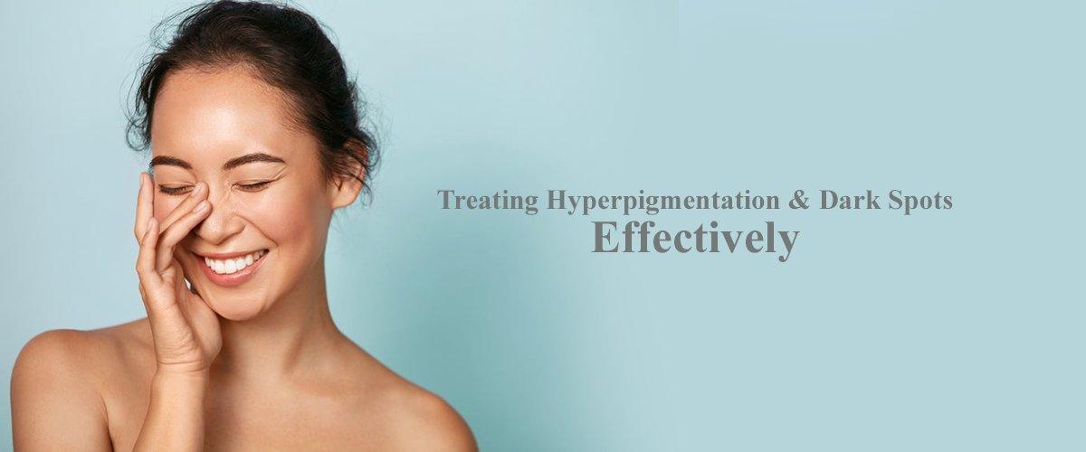 Treating Hyperpigmentation Dark Spots Effectively banner