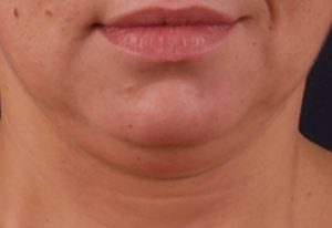 exilis-ultra-chin_before