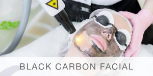 Carbon-facial-Peel