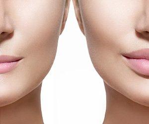 Lip-enhancement